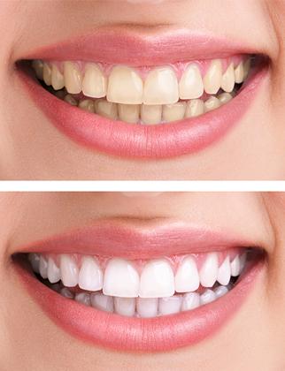 Blanchiment dentaire Paris 15