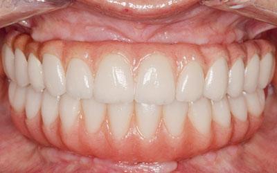 Bridges complet sur 4 implants dentaires