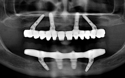 Examen Radiographique Aprés