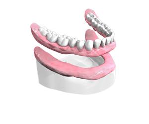 Dentier Fixe Complet